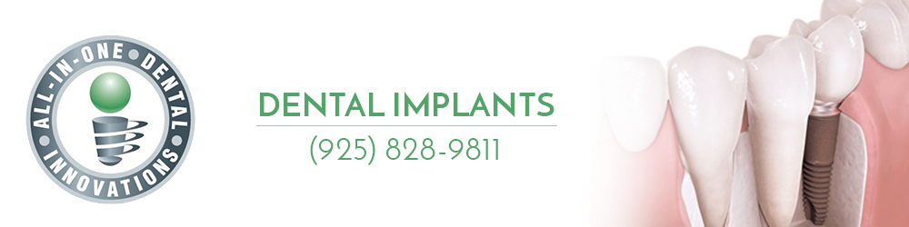 All In One Dental offers Implant Dentistry Services