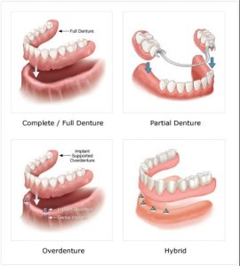 We offer partial, overdenture, full, hybrid dentures in the East Bay Area CA