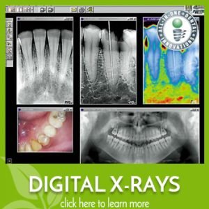 Learn more about digital x-rays