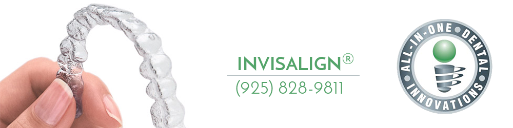 All In One Dental Offers Invisalign braces