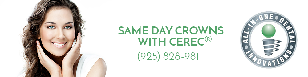 All In One Dental same day crowns with CEREC