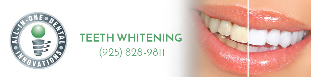 All In One Dental Offers teeth whitening treatment
