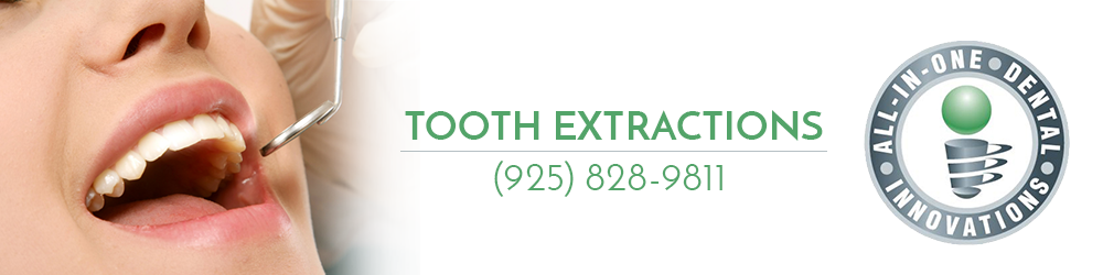 All In One Dental offers tooth extraction services