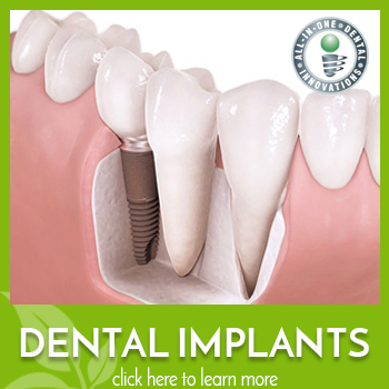 Beautiful Long Lasting Dental Implants