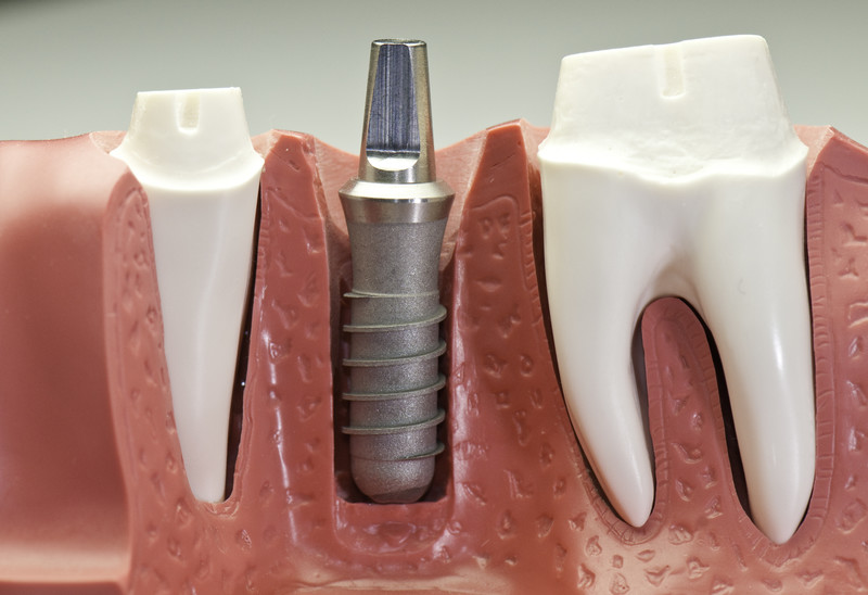 Complete Dental Implant Step By Step Guide For 2018