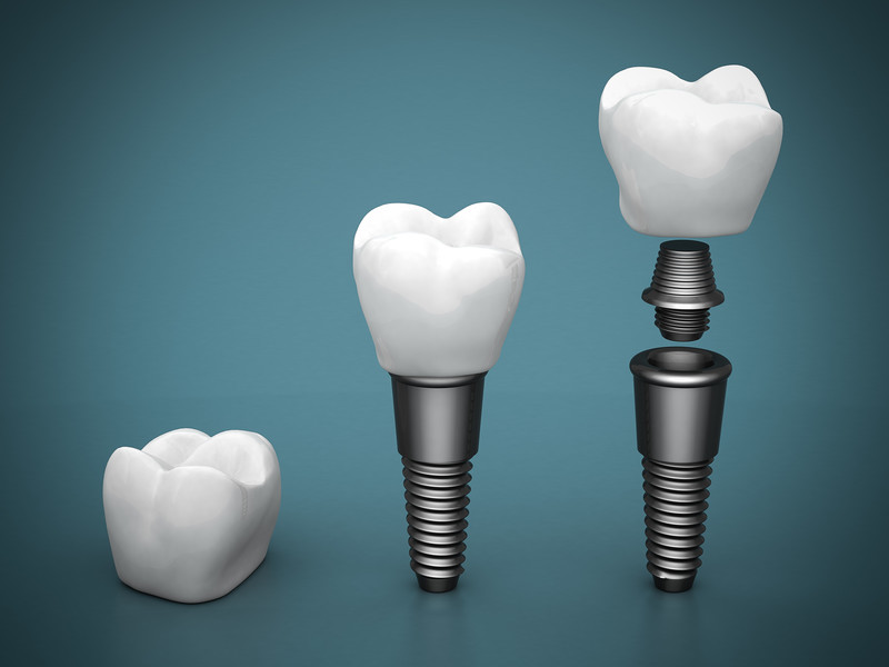 How Safe Is A Dental Implant?